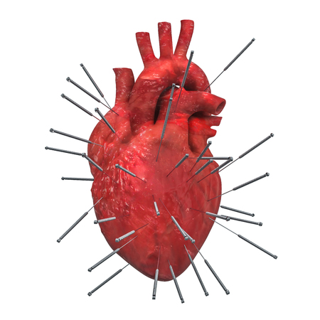 Human heart with acupuncture needles. Acupuncture treatment of heart concept, 3D rendering isolated on white background