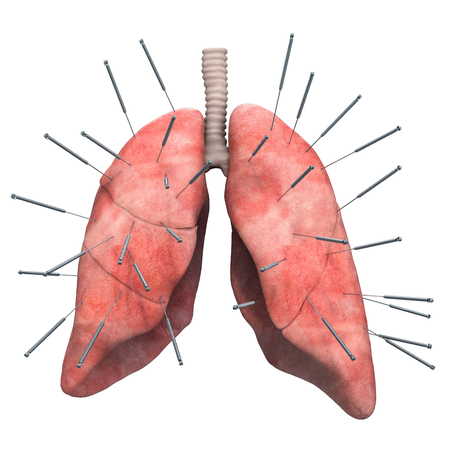 Human lungs with acupuncture needles. Acupuncture treatment of lungs concept, 3D rendering isolated on white background