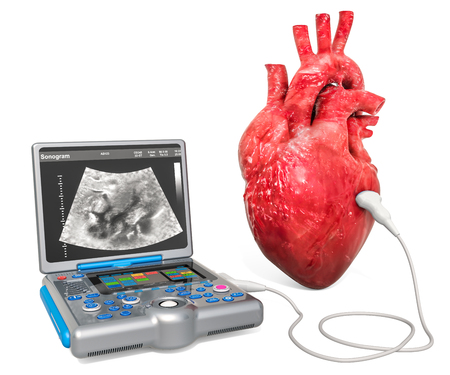 Cardiac Ultrasound concept. Human heart with medical ultrasound diagnostic machine, 3D rendering isolated on white background