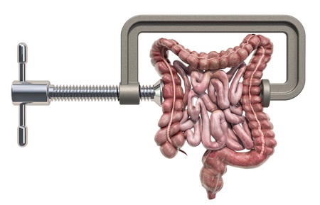 Abdominal pain concept. Vise with human bowel. 3D rendering isolated on white background Archivio Fotografico