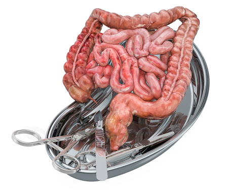 Bowel transplant surgery concept. Donor intestines in metallic tray with surgical instruments, 3D rendering