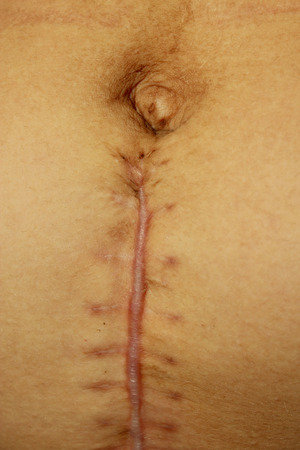 big seams after the operation of Caesarian section
