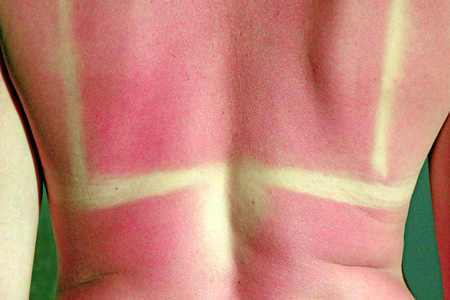 Human back burnt after sunburn. Scald of the back by sun's beams