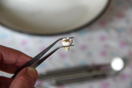 Extracted wisdom tooth in the tweezers