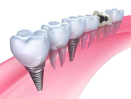 caries dental: Los implantes dentales en la encía - aislados en blanco