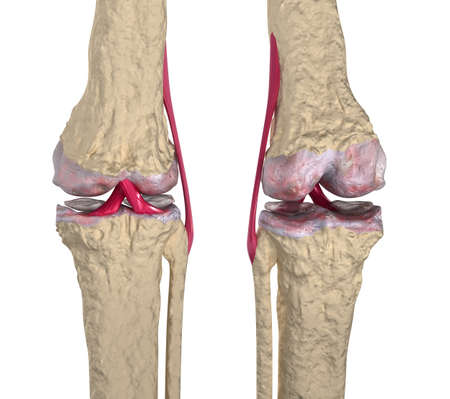 osteoarthritis: Osteoarthritis : Knee joint with ligaments and cartilages Stock Photo