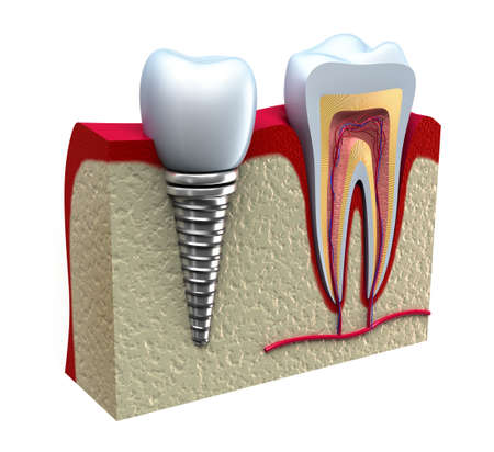 Anatomy of healthy teeth and dental implant in jaw bone  Stock Photo