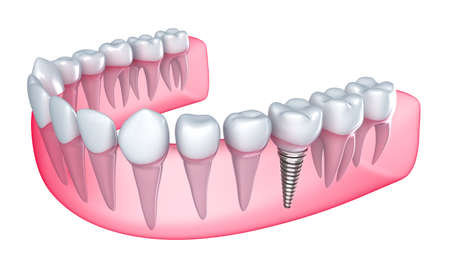 Dental implant in the gum - Isolated on white photo