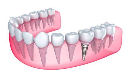 dentadura postiza: Implantes dentales en la enc�a - Aislado en blanco