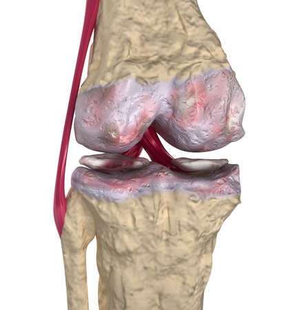 Osteoarthritis   Knee joint with ligaments and cartilages Stock Photo - 13235920