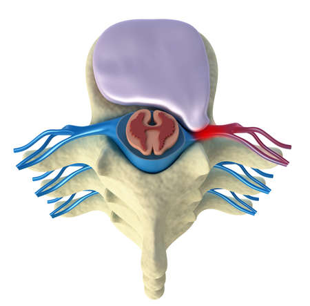 herniated: Prolapse of intervertebral disc  Top view