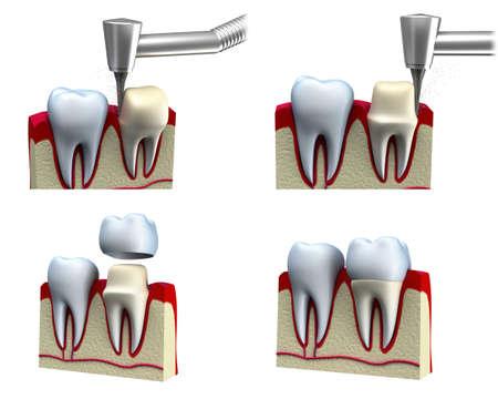 laboratorio dental: Corona dental proceso de instalación, aislado en blanco