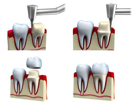 Dental crown installation process, isolated on white photo