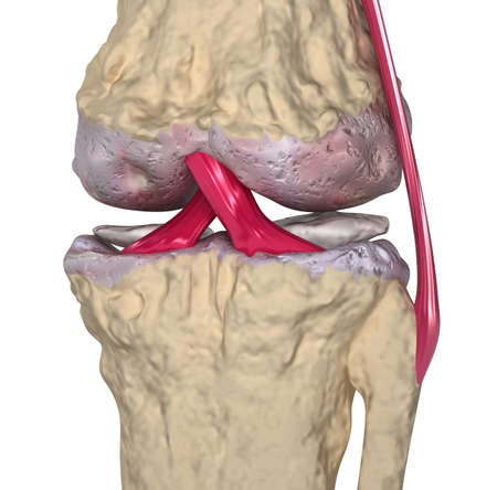 Osteoarthritis   Knee joint with ligaments and cartilages photo