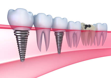 Dental implants in the gum - Isolated on white photo