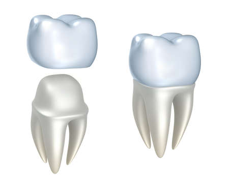 Las coronas dentales y dientes, aislados en blanco