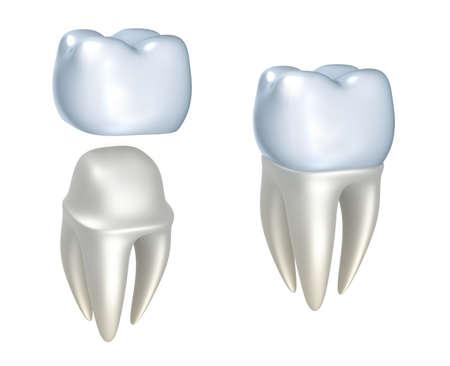 dentier: Les couronnes dentaires et des dents, isolé sur blanc