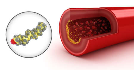 vasos sanguineos: Placas de colesterol en las arterias y el modelo de colesterol