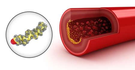 erythrocyte: Placca di colesterolo in arteria e il modello del colesterolo