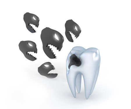 dental caries: Teeth with caries, and angry metaphor