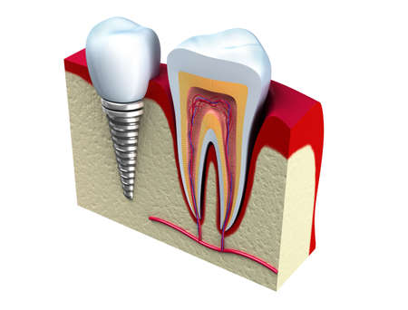 dentin: Anatomy of healthy teeth and dental implant in jaw bone  Stock Photo