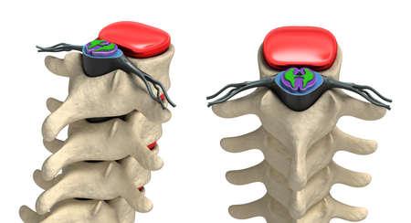 vertebra: Human spine in details  Vertebra, bone marrow, disc and nerves