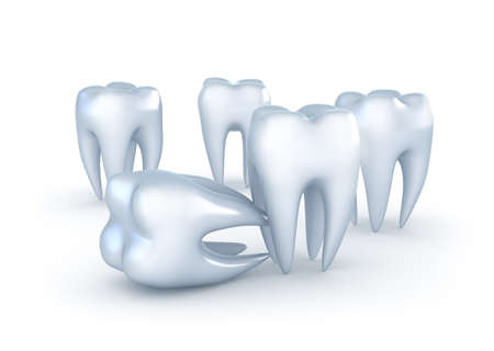 carious: Teeth on white background Stock Photo