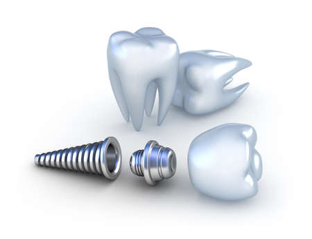 Dental implant and teeth, isolated on white photo