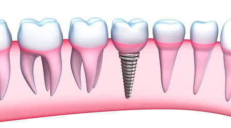 caries dental: Implante Dental vista detallada Ilustraci�n 3D