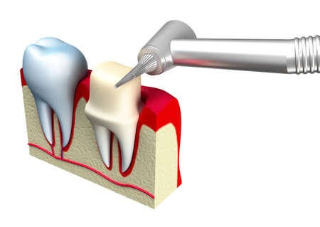 artificial teeth: Preparation of the tooth crown for prosthetics  3d image