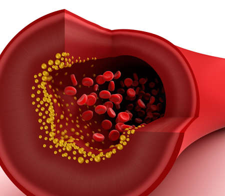 Closeup view of cholesterol plaque in blood vessel Stock Photo