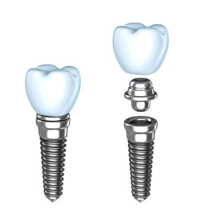 oral surgery: Tooth implant  Аssembled and disassembled  Isolated on white