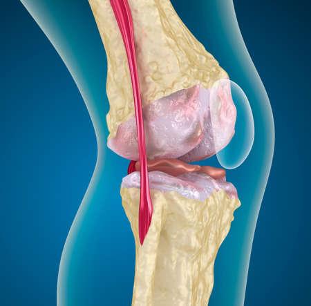artritis: Osteoporosis de la articulaci�n de la rodilla Foto de archivo