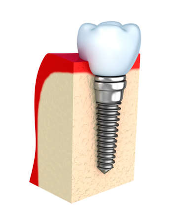 Dental implant in jaw bone photo