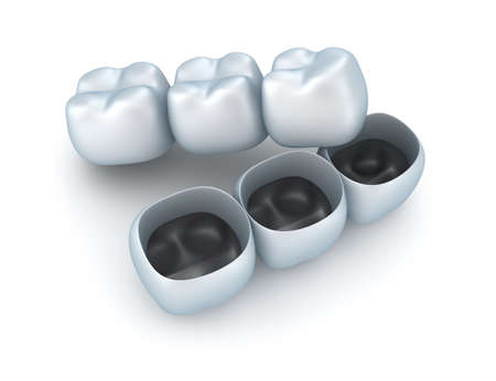Coronas de dientes artificiales photo