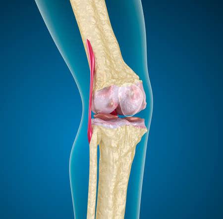 artrosis: Articulación de la rodilla humana
