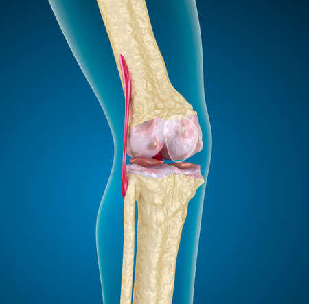 erosion: Human knee joint
