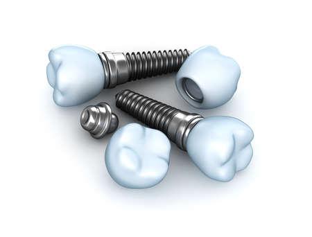 Setzen von Zahnimplantaten Standard-Bild - 18345913