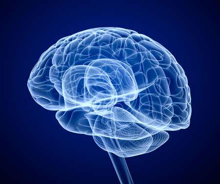 cerebro: Brain exploración de rayos X