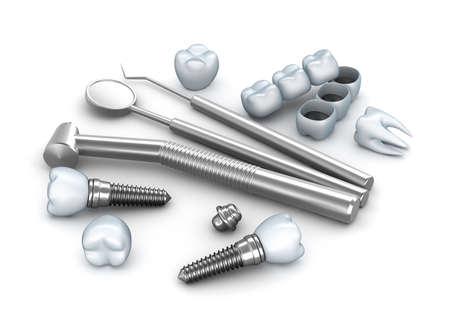 decayed teeth: Dientes, implantes, e instrumentos dentales Foto de archivo