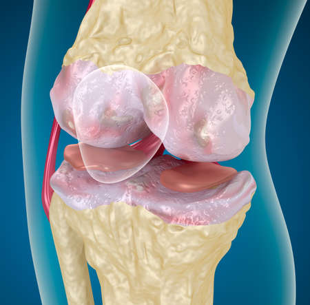 articulation: Osteoarthritis   Knee Stock Photo