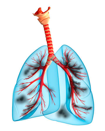lung disease: Diseased lungs