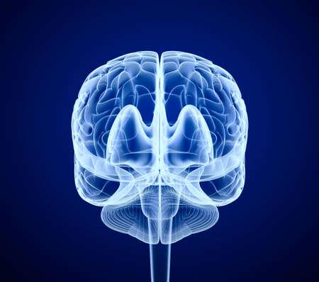 cerebro humano: Cerebro exploraci�n, de rayos X, de frente Foto de archivo