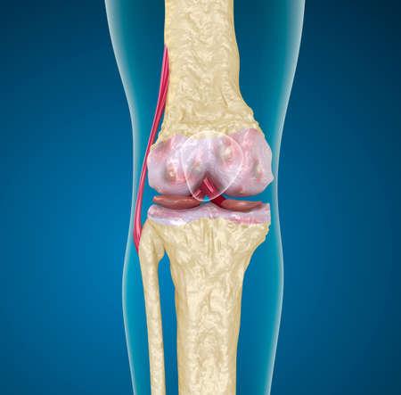 Osteoporose des Kniegelenks Standard-Bild - 20586731