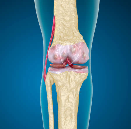 osteoporosis: Osteoporosis de la articulaci?n de la rodilla