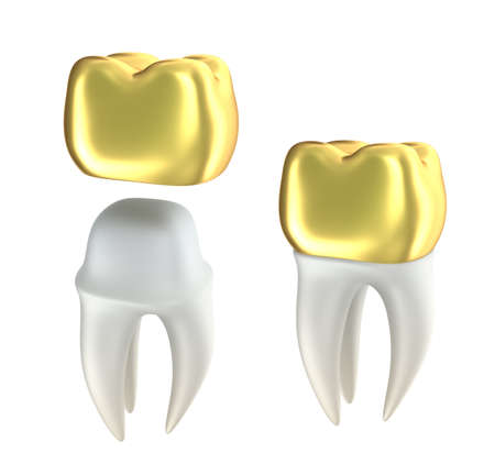restoration: Golden Dental crowns and tooth, isolated on white