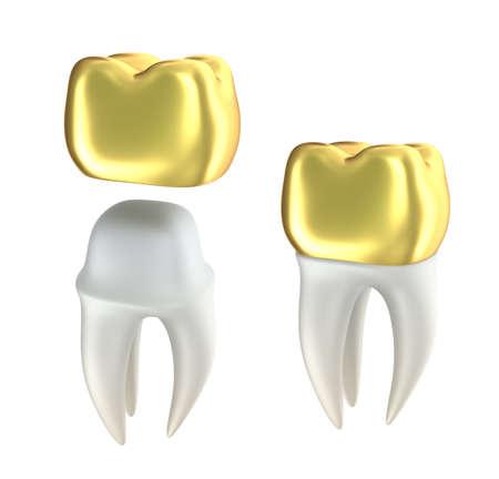 Gouden Tandkronen en tand, geïsoleerd op wit Stockfoto
