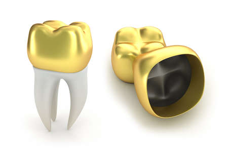 Golden Dental crowns and tooth, isolated on white  Stock Photo - 20586801