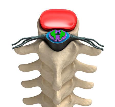 vertebra: Human spine in details  Vertebra, bone marrow, disc and nerves  Stock Photo