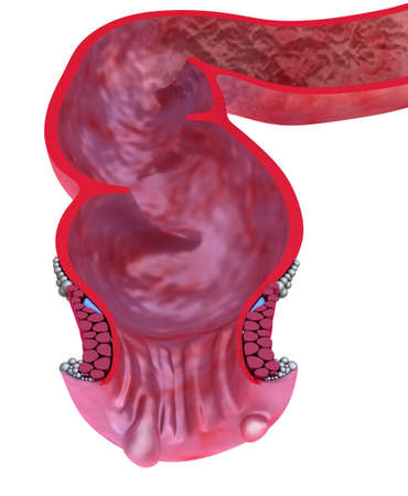 bowel: Hemorrhoids   Anal disorders